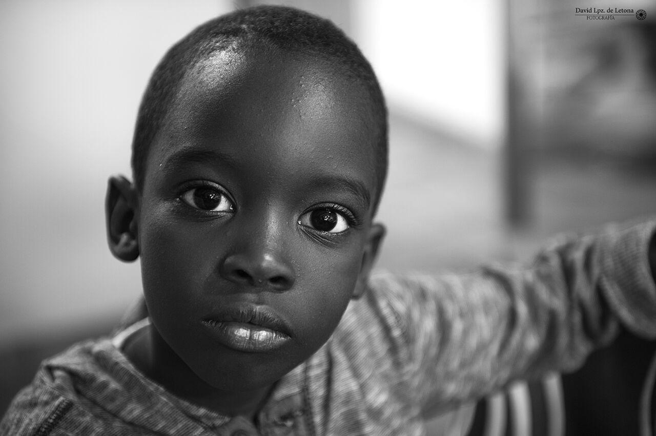 El hospital Vithas San José colabora con la Fundación Tierra de hombres para devolver la movilidad a un niño de Mauritania